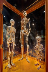 Compare and Contrast: Giant, dwarf, and average human skeletons.