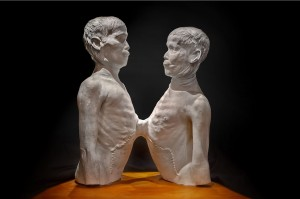 Death cast of Siamese twins.